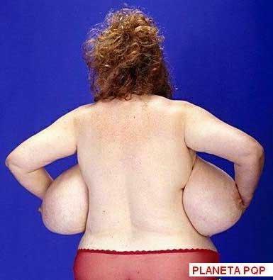 peito nas costas